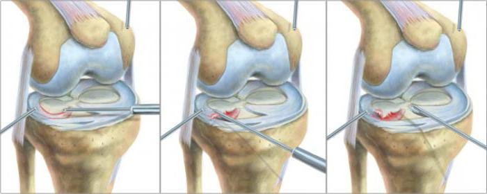 мениск коленного сустава лечение операция