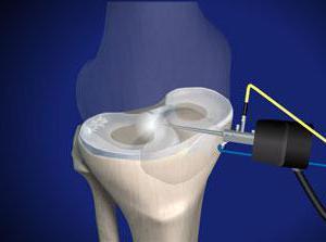 операция по удалению мениска коленного сустава