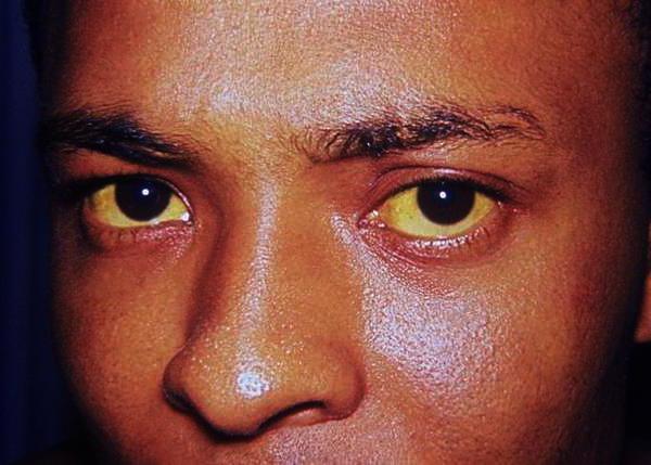 повышен билирубин аллергия