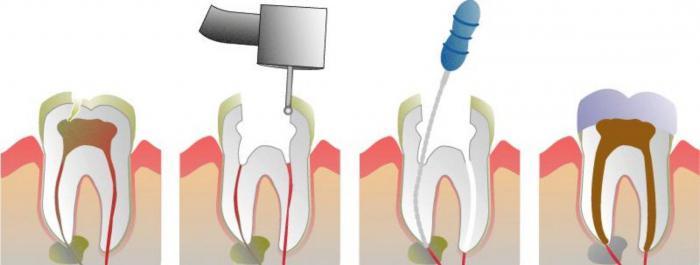 повторное эндодонтическое лечение