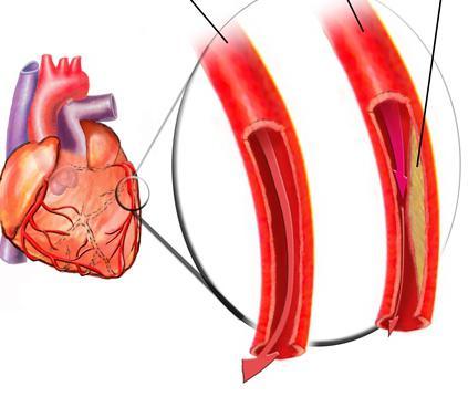 стенокардия напряжения 1 2 фк