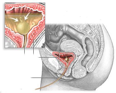 Нейрогенный мочевой пузырь у ребенка. Нейрогенный мочевой пузырь: причины, диагностика и лечение