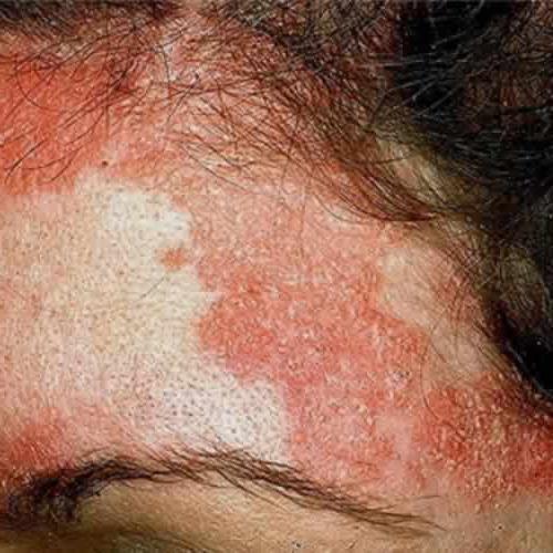 элидел от аллергии отзывы