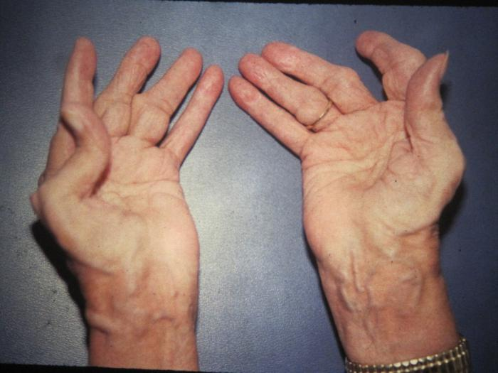Ревм артрит на шийни прешлени