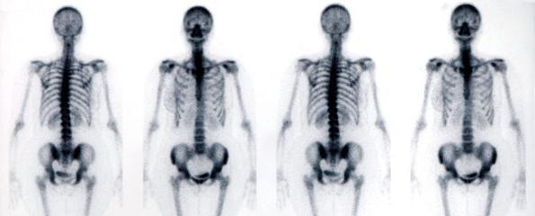 скелет основа тела