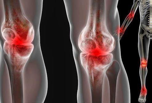 Болят суставы рук и ног, что делать? Боль в суставах ног и рук: причины и лечение
