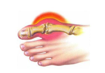 выпирающая косточка на ноге лечение
