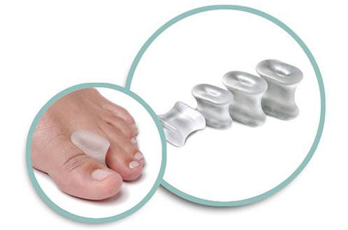 косточка на ноге лечение йодом