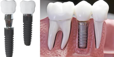 Зубной имплантат