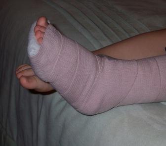 фото лангетки на ногу