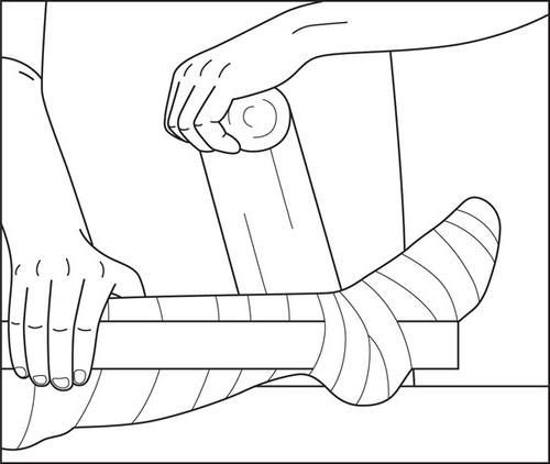 лангетка на голеностоп