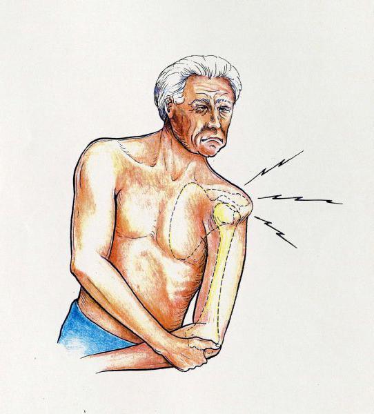 Артрит артроз стопы лечение Суставы