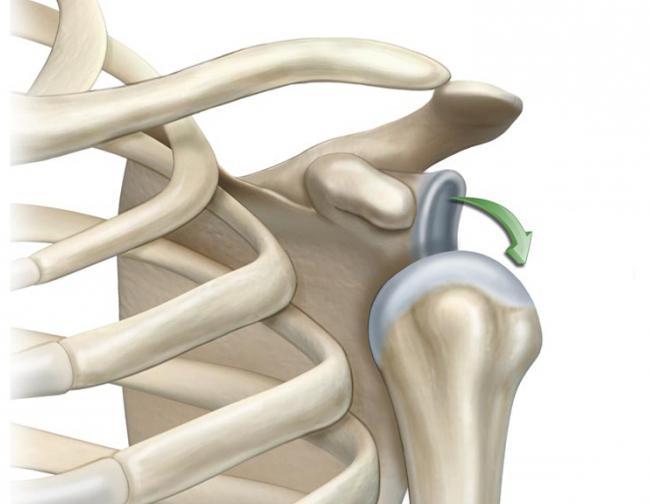вывих плечевого сустава реабилитация