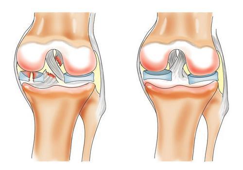 народные средства боль коленного сустава в домашних условиях