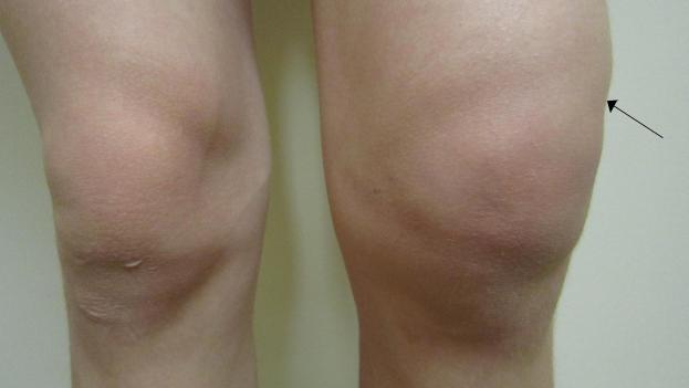 артроз 1 степени коленного сустава лечение народными средствами
