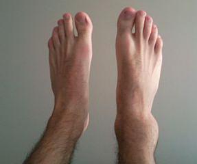 Вывих ноги как лечить в домашних условиях
