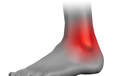 как лечить и что делать при вывихе ноги