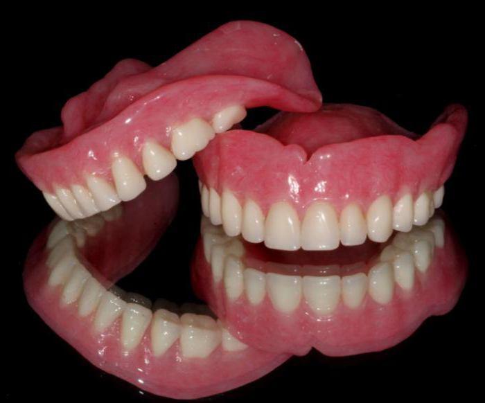 зубные протезы какие лучше поставить