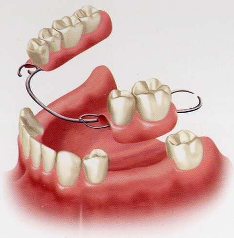 какие зубные протезы лучше поставить отзывы
