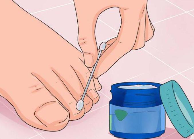 Грибок ногтей лечение формалином