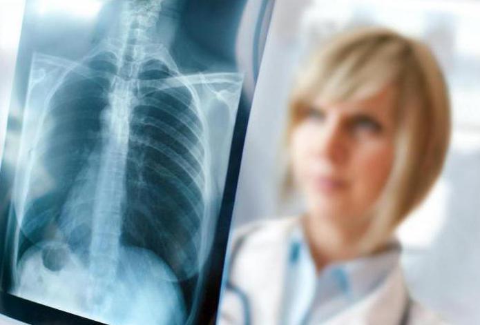 Перфорация кишечника: симптомы, причины, методы диагностики и терапии