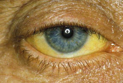 Желтые глаза у человека