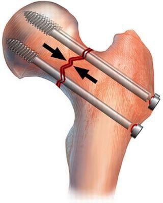 закрытый перелом тазобедренного сустава