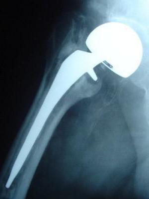 перелом тазобедренного сустава лечение