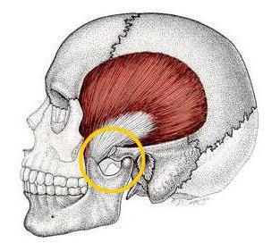 дисфункция височно нижнечелюстного сустава лечение