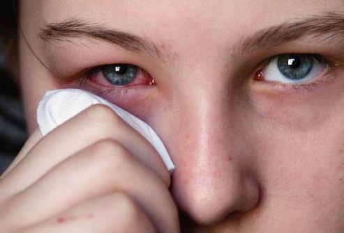 конъюнктивит лечение у взрослых капли