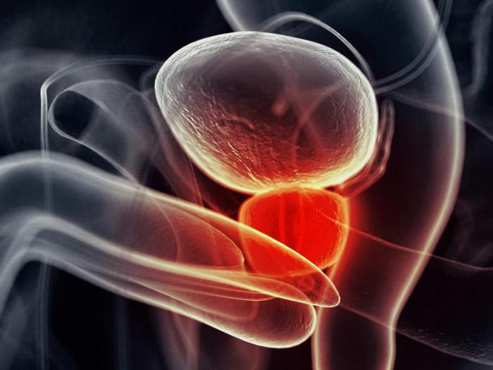 Простата увеличенная: причины и лечение