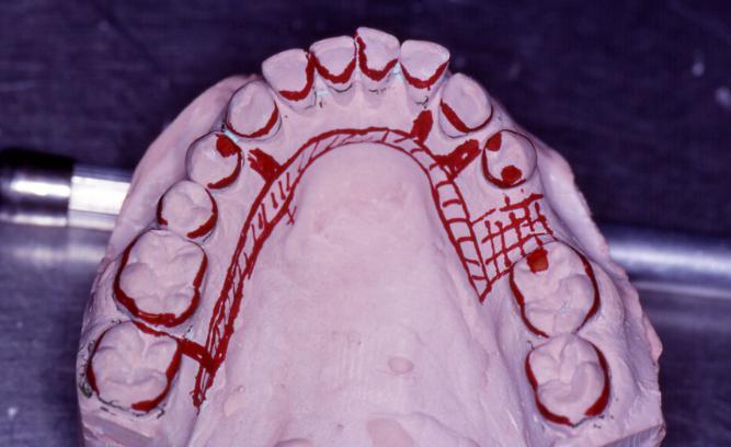 кому положено бесплатное протезирование зубов