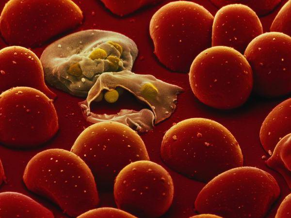 диагностика паразитов в организме человека в москве