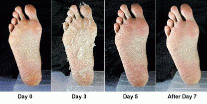 Маска-носки для ног floresan отшелушивающая | отзывы покупателей.