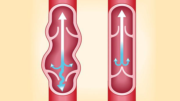 операция удаление вен на ногах