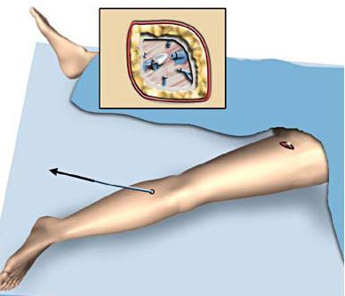 операции на венах нижних конечностей