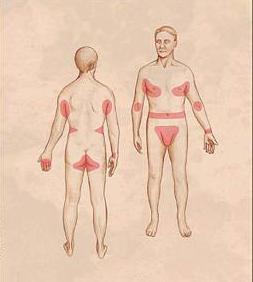 первые признаки чесотки у человека