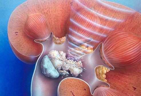 мочекаменная болезнь почек у мужчин ее лечение