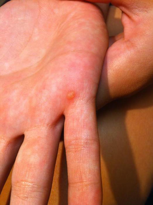 почему появляются бородавки на пальцах рук