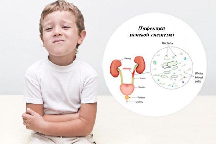 Пузырно-мочеточниковый рефлюкс у детей и взрослых. Симптомы, диагностика, лечение