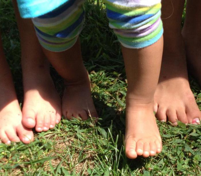 комплекс упражнений для профилактики плоскостопия у детей