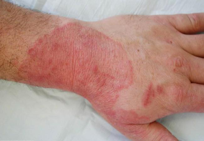 микозы кожи лечение
