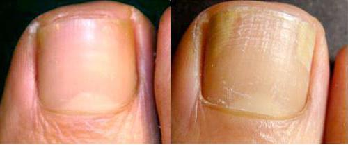 микоз гладкой кожи лечение