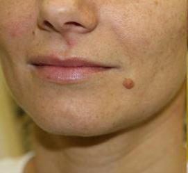 Удаление родинок на лице без шрамов
