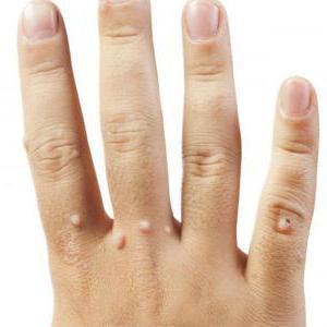 hpv инфекция у женщин описание процедуры
