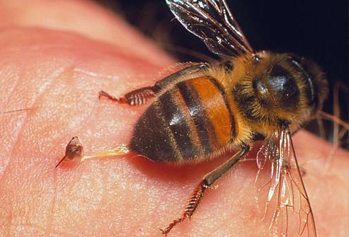 лечение варикоза пчелами