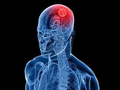 фото опухоль мозга
