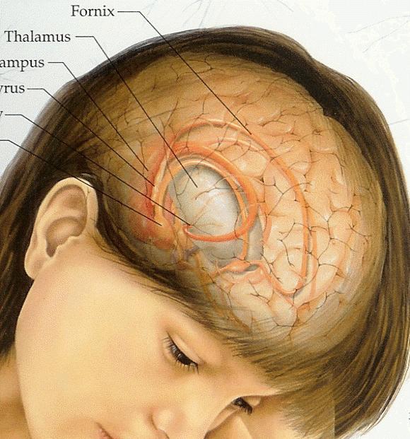 опухоль мозга симптомы на ранней стадии