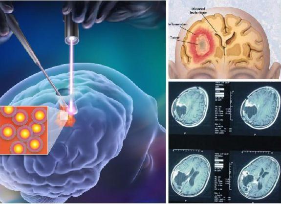 признаки опухоли мозга