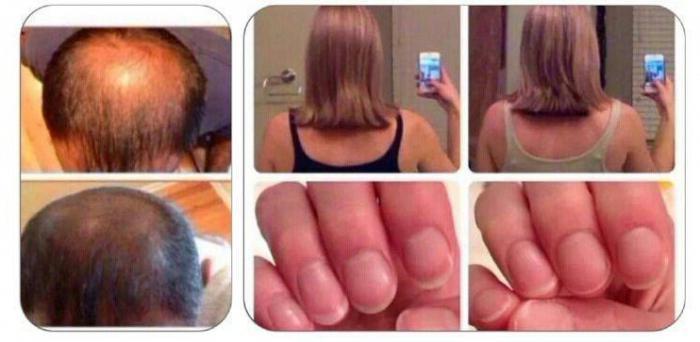 Солгар для ногтей кожи волос отзывы